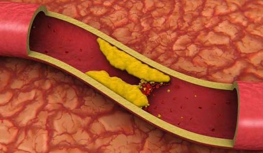 efecte colesterol