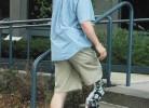 prima-proteza-bionica