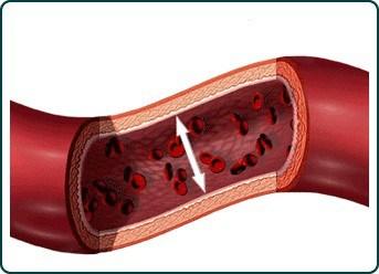 tensiune arteriala