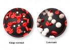 celule leucemie